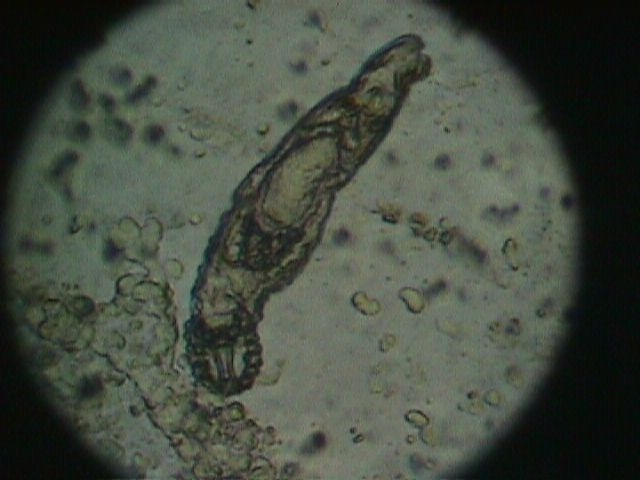 Fluke, trematode under the microscope