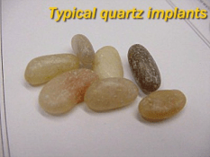 quartz implants for flipover surgery
